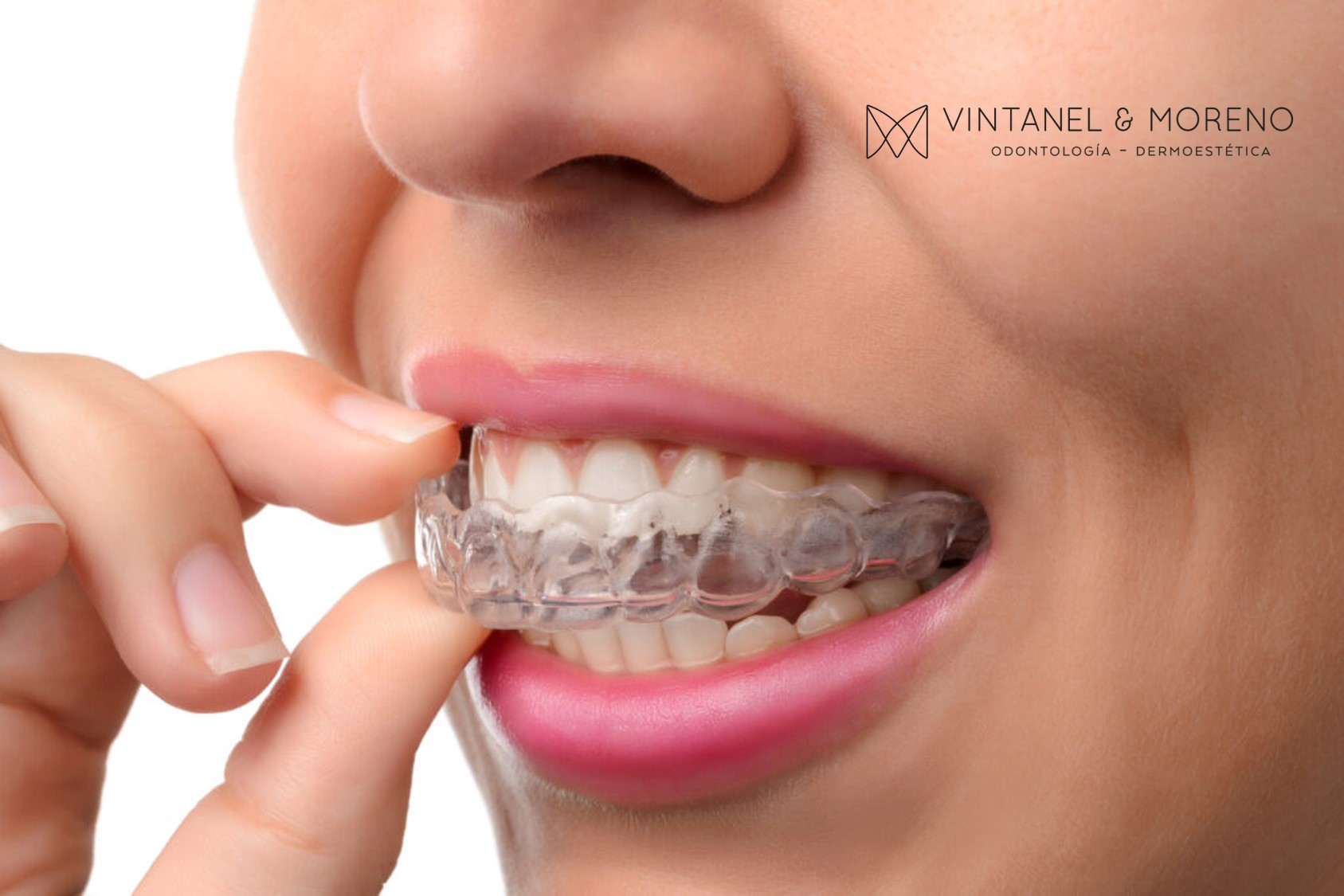 Sistema Invisalign: Ortodoncia estética