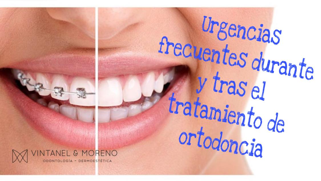 Urgencias dentales en tu tratamiento de ortodoncia durante el confinamiento debido al coronavirus.