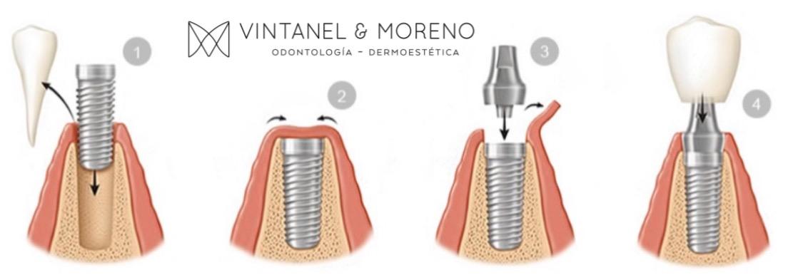 ¿Qué es la segunda fase del implante?