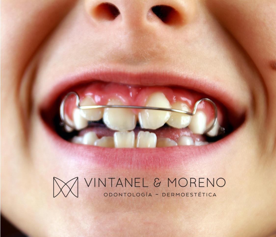 ¿Cuál es la mejor edad para que mi hijo comience su tratamiento de ortodoncia?