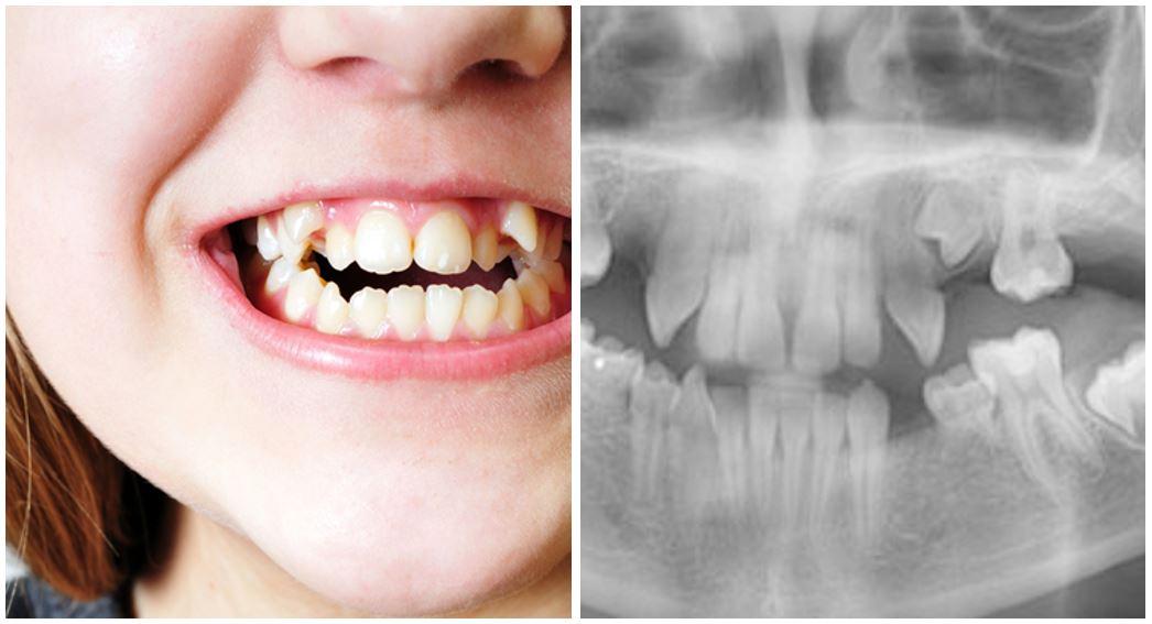¿Qué es la agenesia dental?
